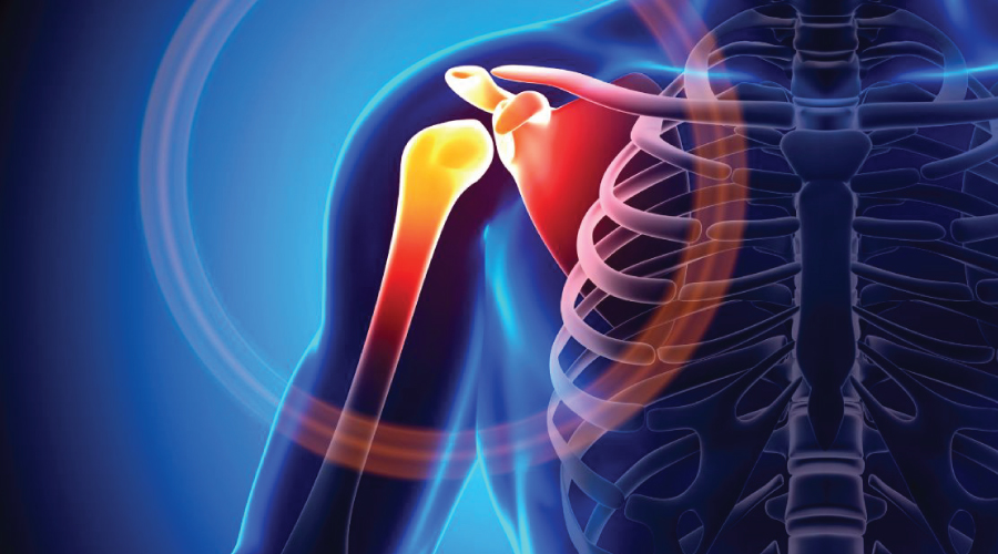 Painful Shoulder Shoulder Impingement Syndrome The Body Refinery